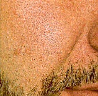 Dermatosen Gesicht