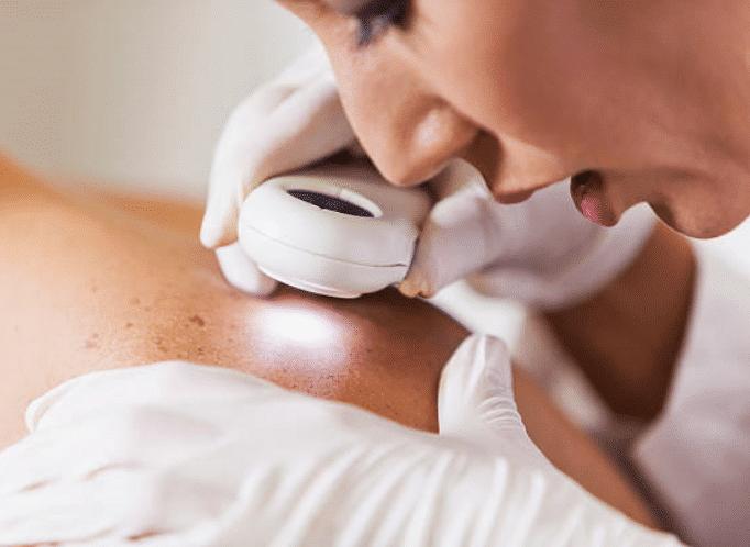 Fachperson Untersucht Die Haut Am Rücken Mit Einer Lupe Und Licht