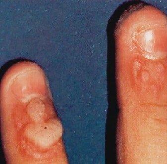 Warzen Auf Den Fingern