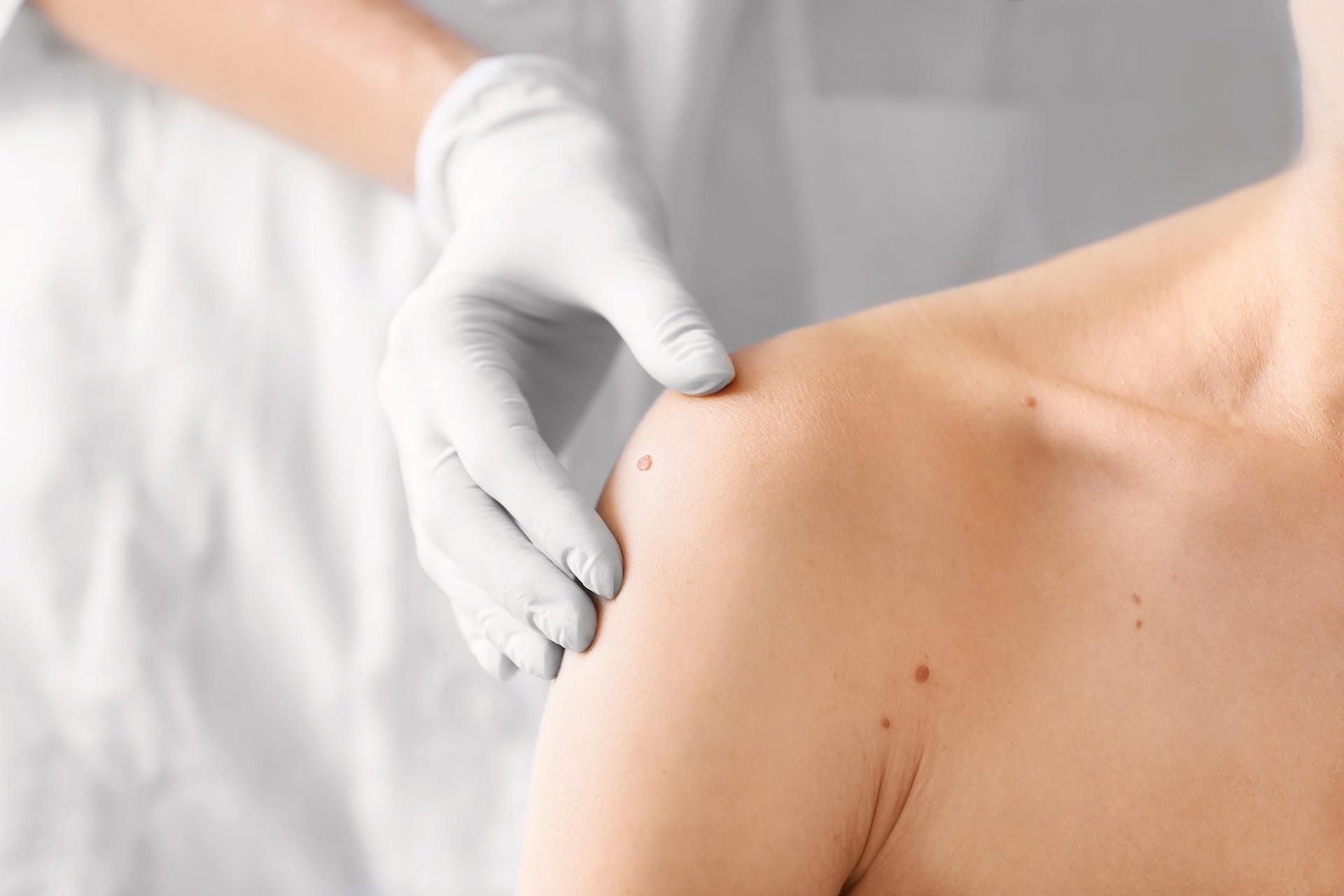 Untersuchung eines Muttermals auf der Schulter durch eine Fachperson